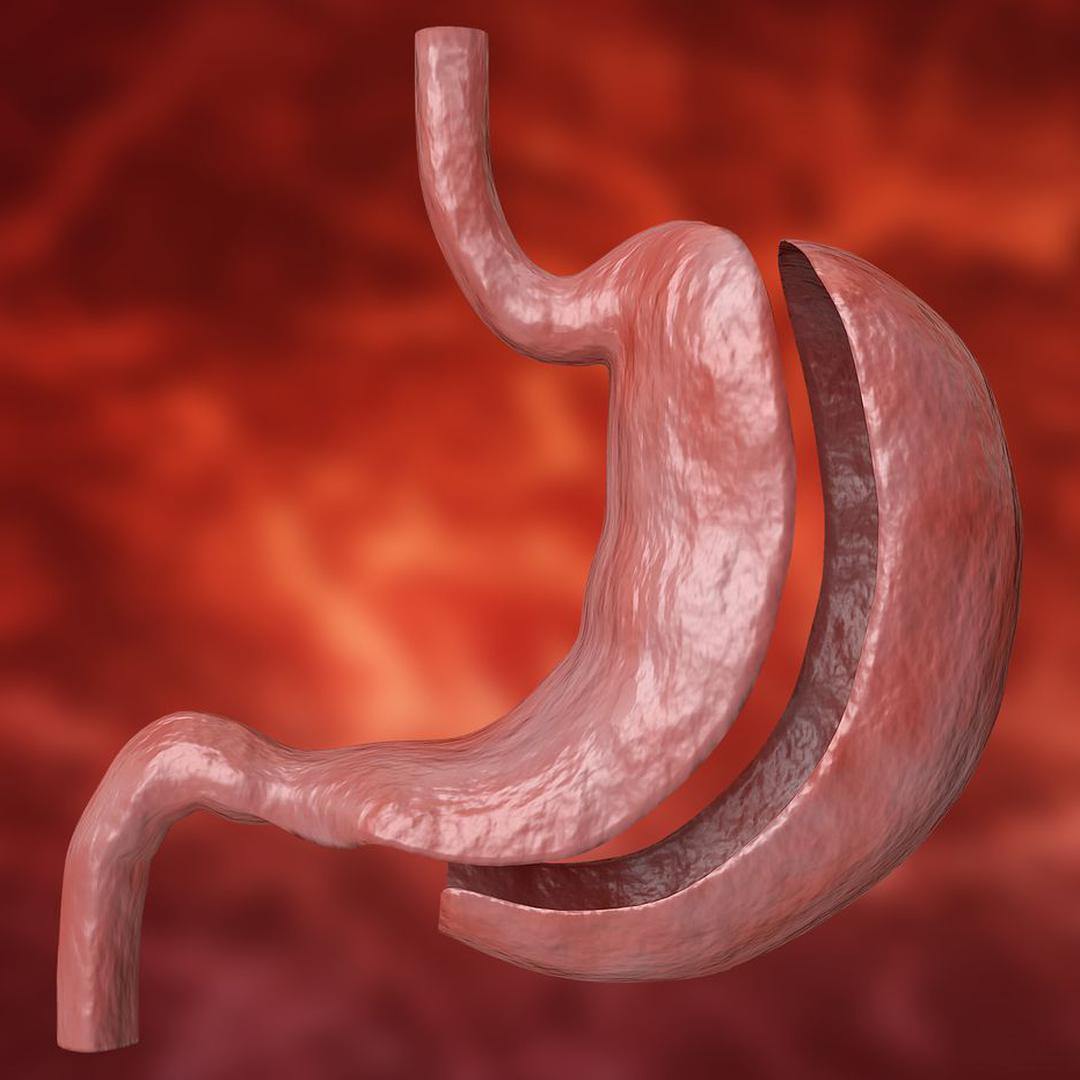 gastroplastia vertical