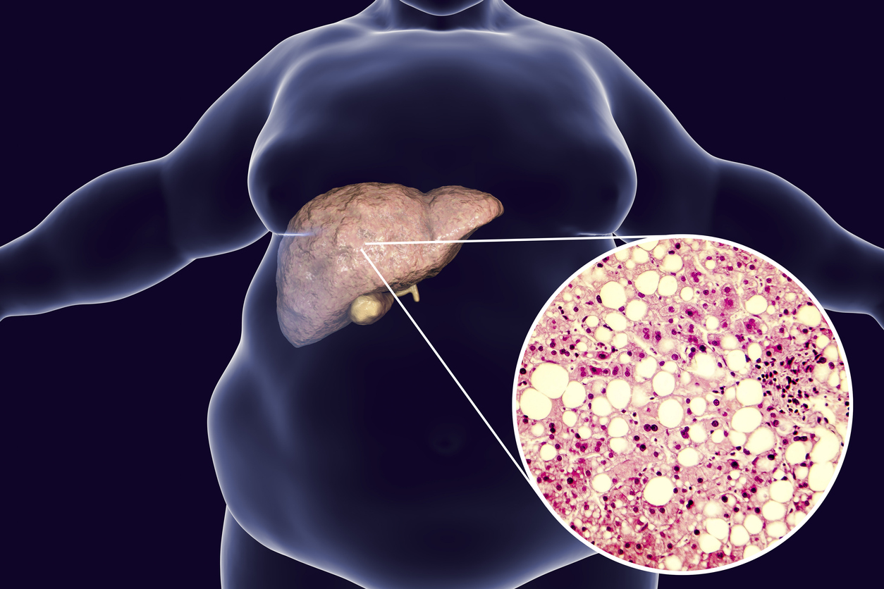 Esteatose hepática