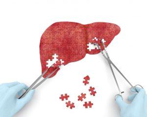 cisto hepático